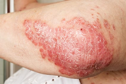 psoriasis on a person's elbow